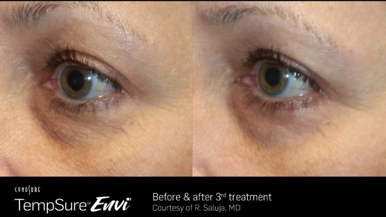TempSure Envi Eyes Before and After