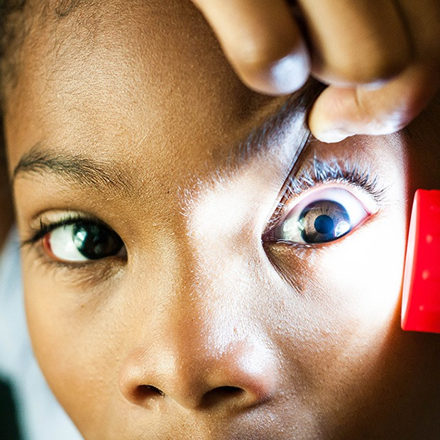 Flashlight shining at young person's eye, a hand used to pull eyelid up